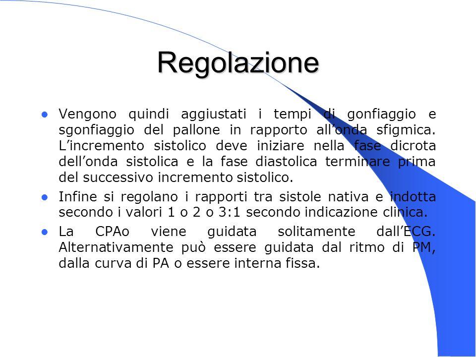 Genova 15 Nov 2003 Regolazione Vengono quindi aggiustati i tempi di gonfiaggio e sgonfiaggio del pallone in rapporto allonda sfigmica. Lincremento sis