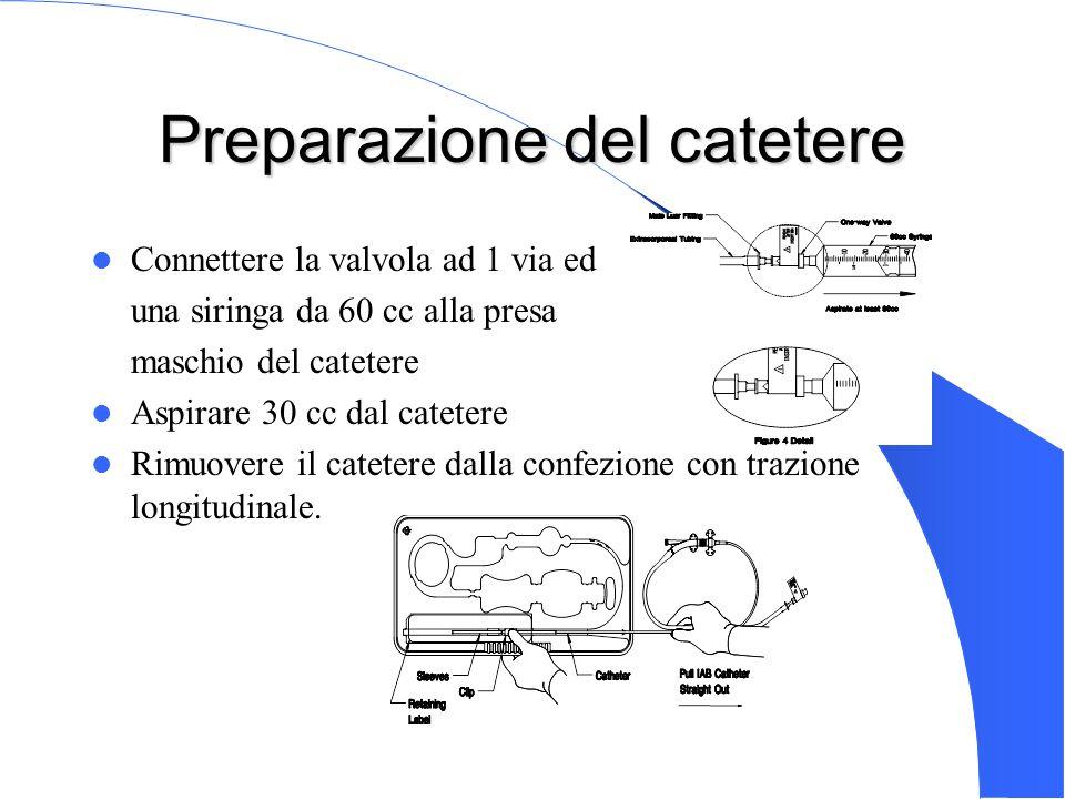 Genova 15 Nov 2003 Preparazione del catetere Connettere la valvola ad 1 via ed una siringa da 60 cc alla presa maschio del catetere Aspirare 30 cc dal