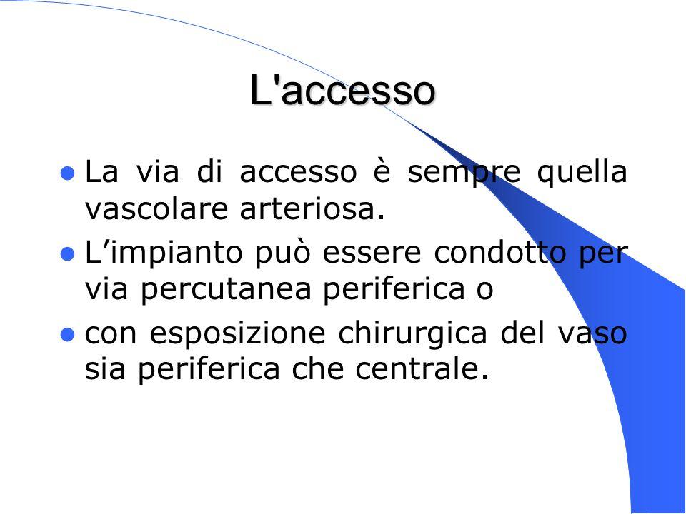 Genova 15 Nov 2003 L'accesso La via di accesso è sempre quella vascolare arteriosa. Limpianto può essere condotto per via percutanea periferica o con