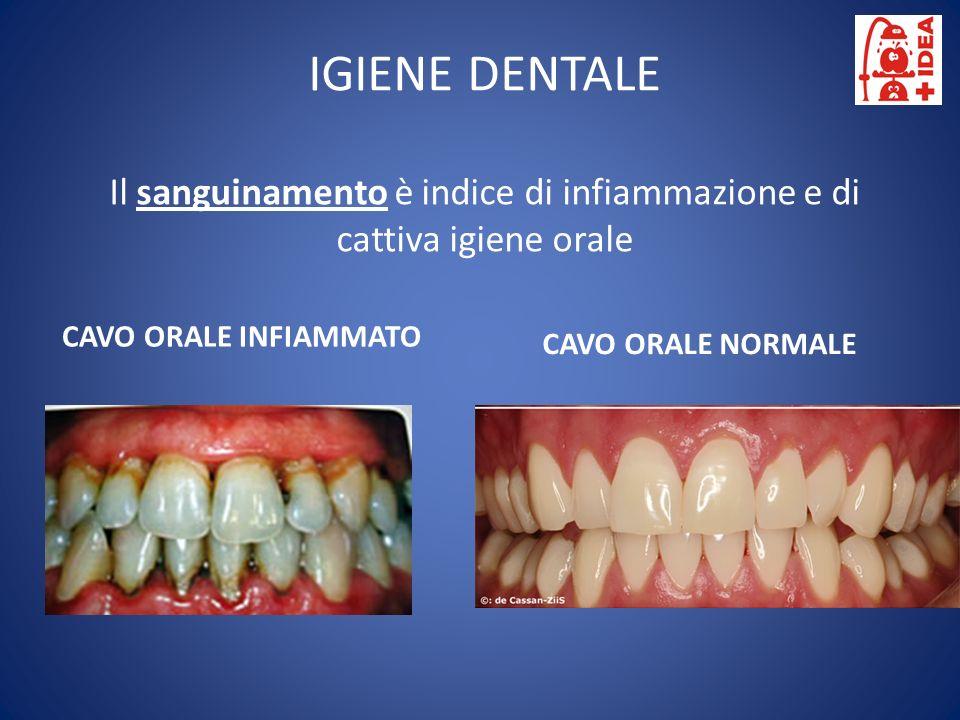 IGIENE DENTALE Il sanguinamento è indice di infiammazione e di cattiva igiene orale CAVO ORALE NORMALE CAVO ORALE INFIAMMATO
