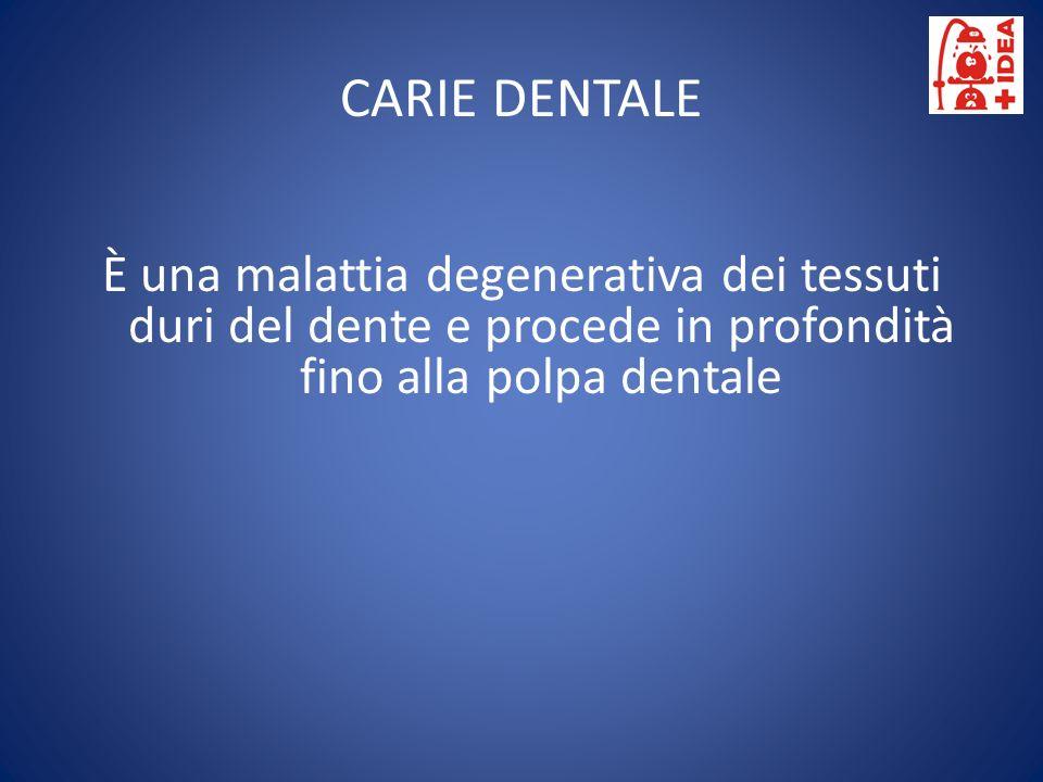 È una malattia degenerativa dei tessuti duri del dente e procede in profondità fino alla polpa dentale