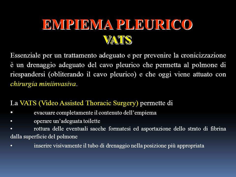 EMPIEMA PLEURICOVATS VATS Essenziale per un trattamento adeguato e per prevenire la cronicizzazione è un drenaggio adeguato del cavo pleurico che perm