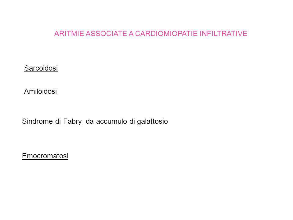 ARITMIE ASSOCIATE A CARDIOMIOPATIE INFILTRATIVE Sarcoidosi Amiloidosi Sindrome di Fabry da accumulo di galattosio Emocromatosi