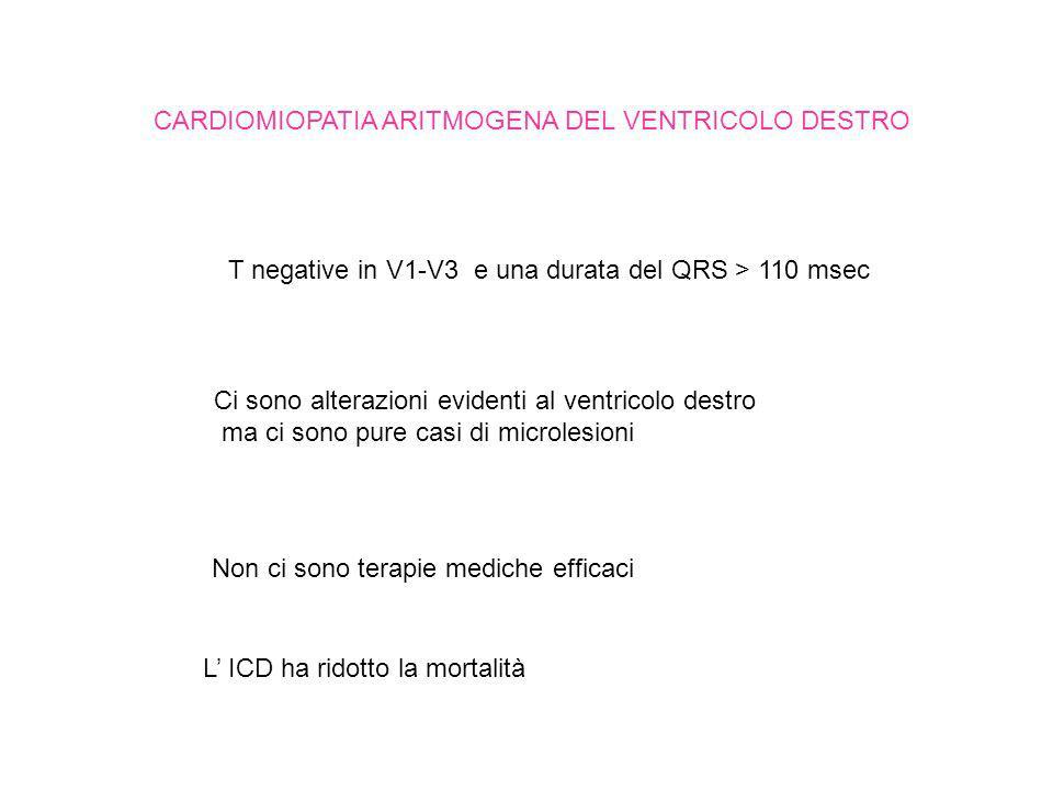 CARDIOMIOPATIA ARITMOGENA DEL VENTRICOLO DESTRO T negative in V1-V3 e una durata del QRS > 110 msec Ci sono alterazioni evidenti al ventricolo destro