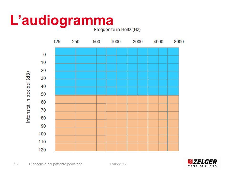 L'ipoacusia nel paziente pediatrico1617/05/2012 Laudiogramma
