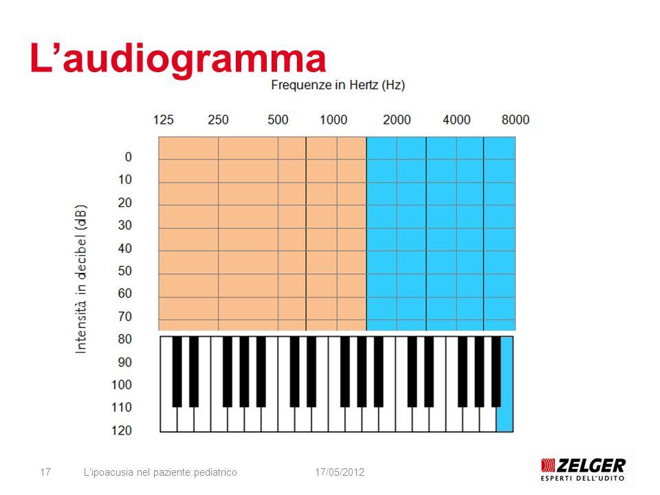 L'ipoacusia nel paziente pediatrico1717/05/2012 Laudiogramma