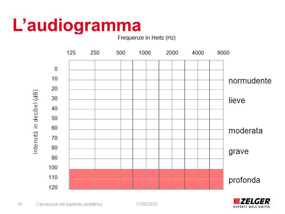 L'ipoacusia nel paziente pediatrico1917/05/2012 Laudiogramma normudente lieve moderata grave profonda