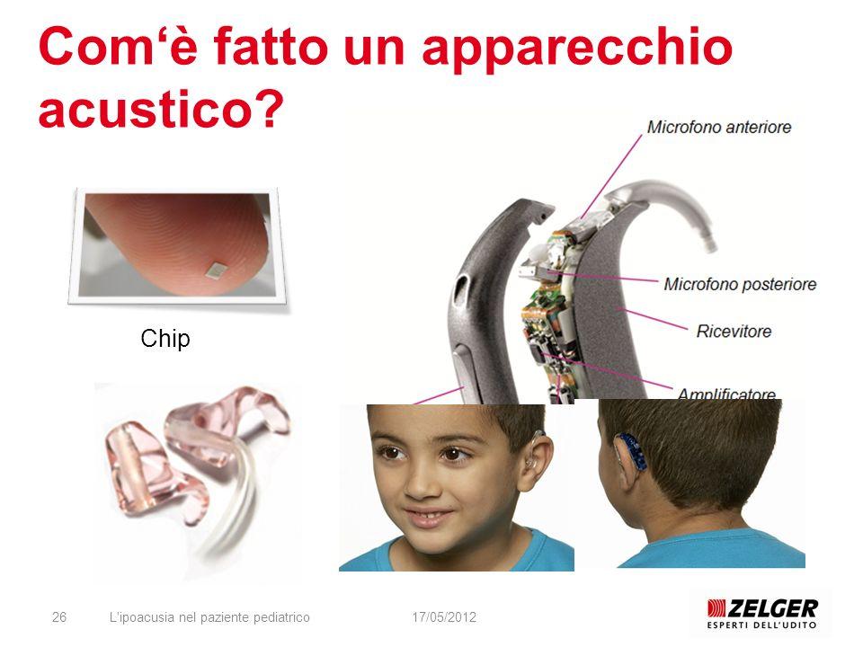 Comè fatto un apparecchio acustico? L'ipoacusia nel paziente pediatrico2617/05/2012 Chip