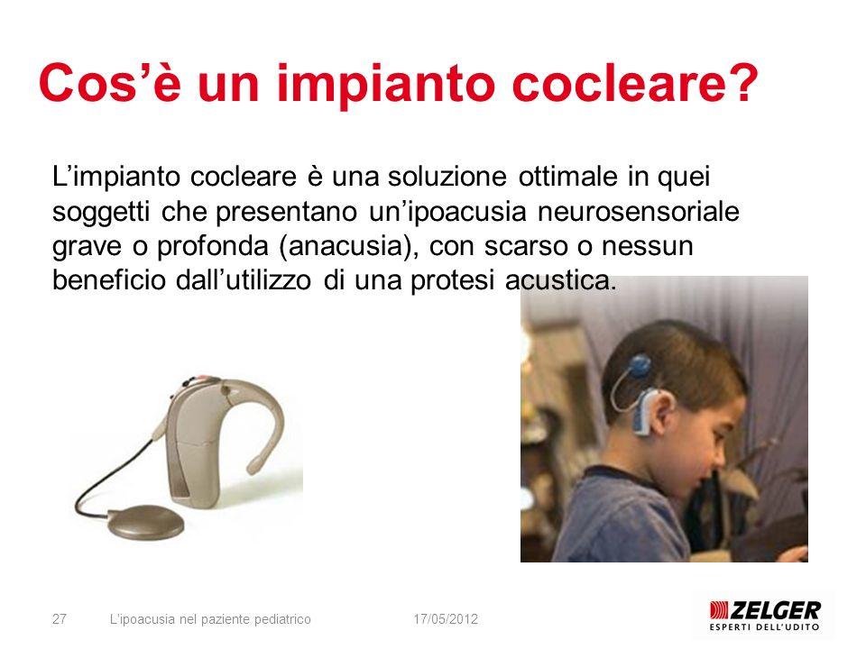 Cosè un impianto cocleare? L'ipoacusia nel paziente pediatrico2717/05/2012 Limpianto cocleare è una soluzione ottimale in quei soggetti che presentano
