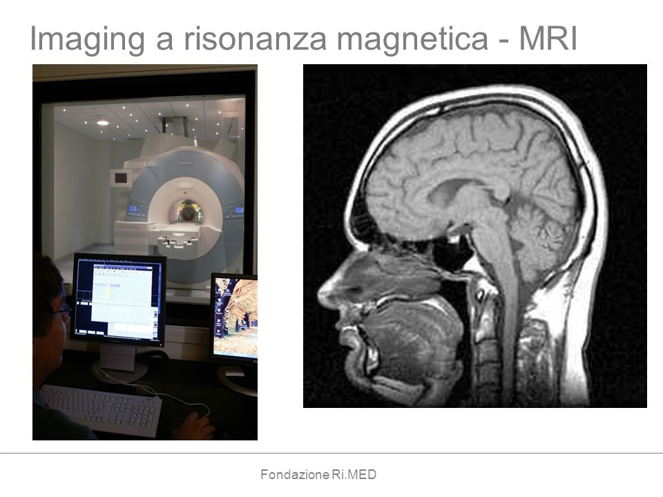 Imaging a risonanza magnetica - MRI Fondazione Ri.MED