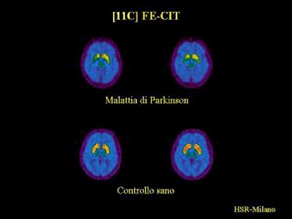 ACQUISIZIONE DELLE INFORMAZIONI Ricerche su: malattia di Parkinson malattia di Parkinson fisiopatologia della malattia di Parkinson fisiopatologia della malattia di Parkinson realtà esistenti di musicoterapia rivolta a parkinsoniani realtà esistenti di musicoterapia rivolta a parkinsoniani terapie per la malattia di Parkinson terapie per la malattia di Parkinson innovazioni farmacologiche per la terapia della malattia di Parkinson innovazioni farmacologiche per la terapia della malattia di Parkinson Schede di rilevamento per ogni partecipante: evoluzione sintomatologica della malattia di Parkinson evoluzione sintomatologica della malattia di Parkinson storia musicale della persona storia musicale della persona vissuto personale e relazionale durante lattività di musicoterapia e al di fuori di questa vissuto personale e relazionale durante lattività di musicoterapia e al di fuori di questa osservazione dei partecipanti durante lattività osservazione dei partecipanti durante lattività