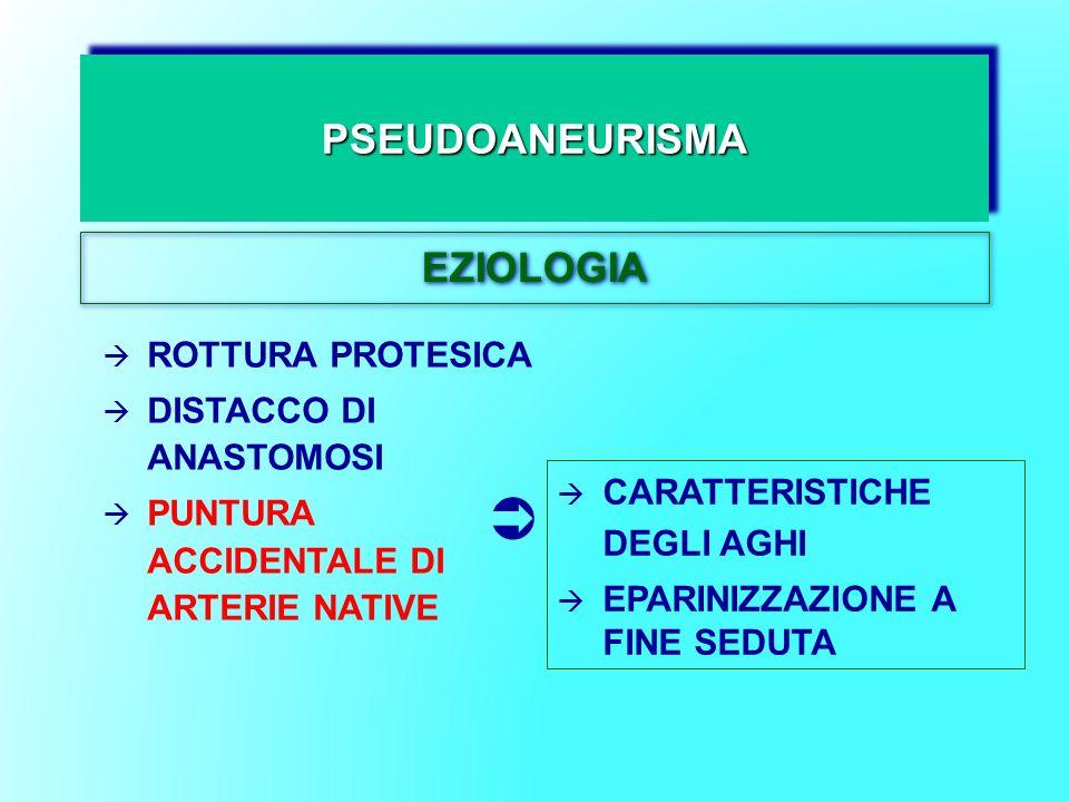 PSEUDOANEURISMAPSEUDOANEURISMA EZIOLOGIA ROTTURA PROTESICA DISTACCO DI ANASTOMOSI PUNTURA ACCIDENTALE DI ARTERIE NATIVE CARATTERISTICHE DEGLI AGHI EPA