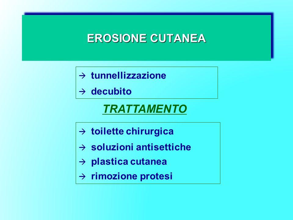 EROSIONE CUTANEA tunnellizzazione decubito TRATTAMENTO toilette chirurgica soluzioni antisettiche plastica cutanea rimozione protesi