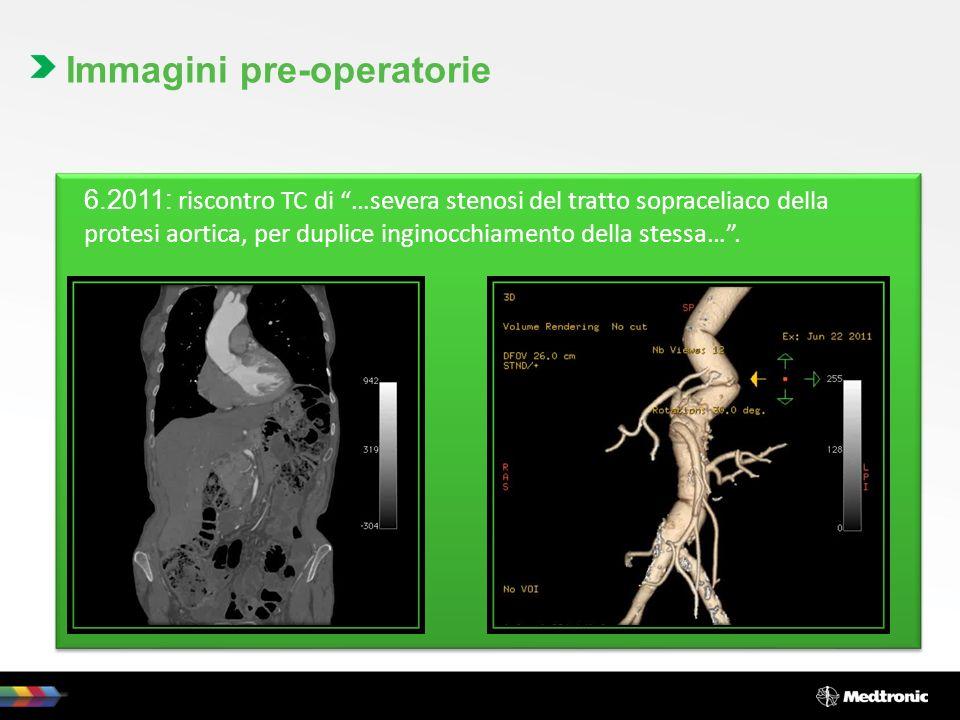 6.2011: riscontro TC di …severa stenosi del tratto sopraceliaco della protesi aortica, per duplice inginocchiamento della stessa…. Immagini pre-operat