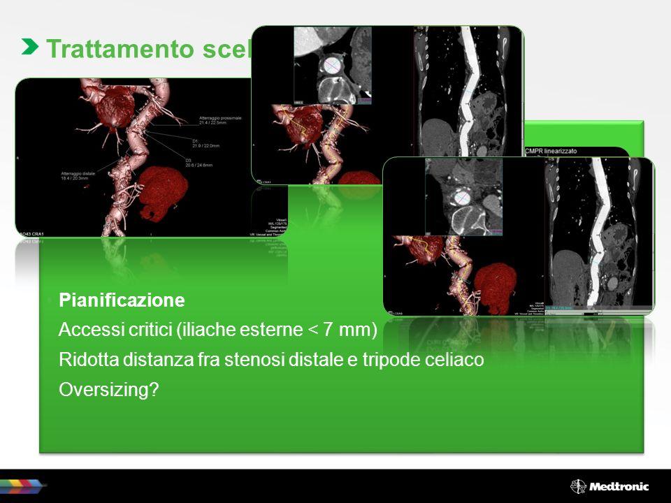 Trattamento endovascolare, mediante posizionamento di endoprotesi Pianificazione Accessi critici (iliache esterne < 7 mm) Ridotta distanza fra stenosi