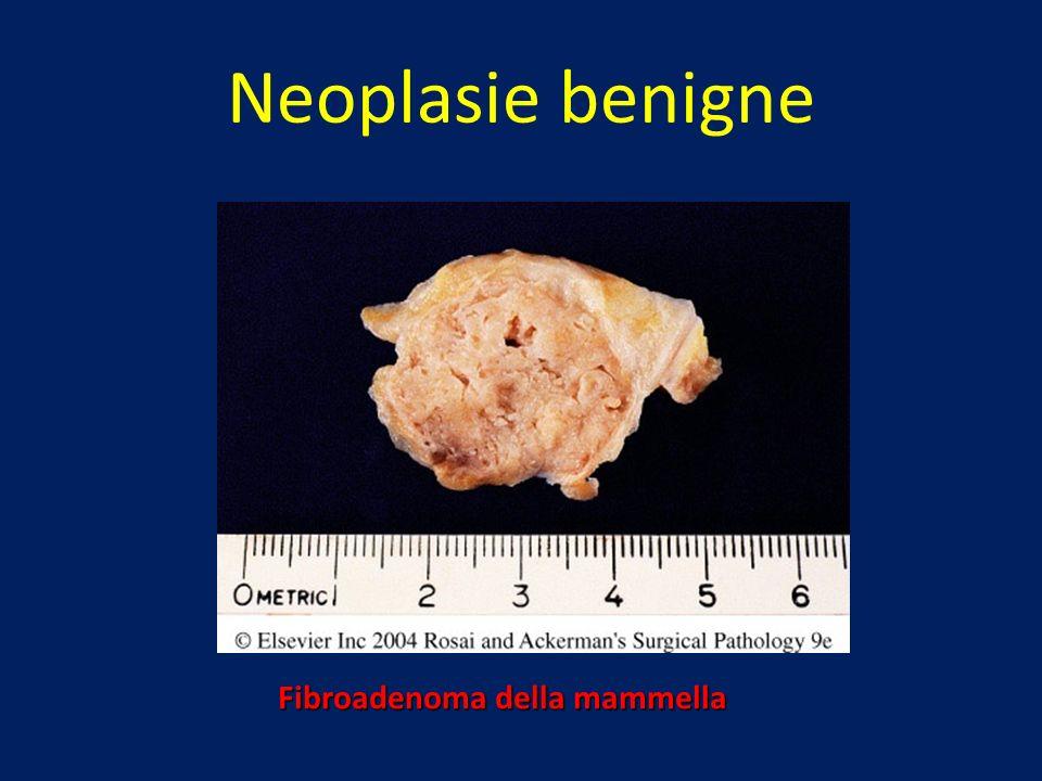 Neoplasie benigne Fibroadenoma della mammella