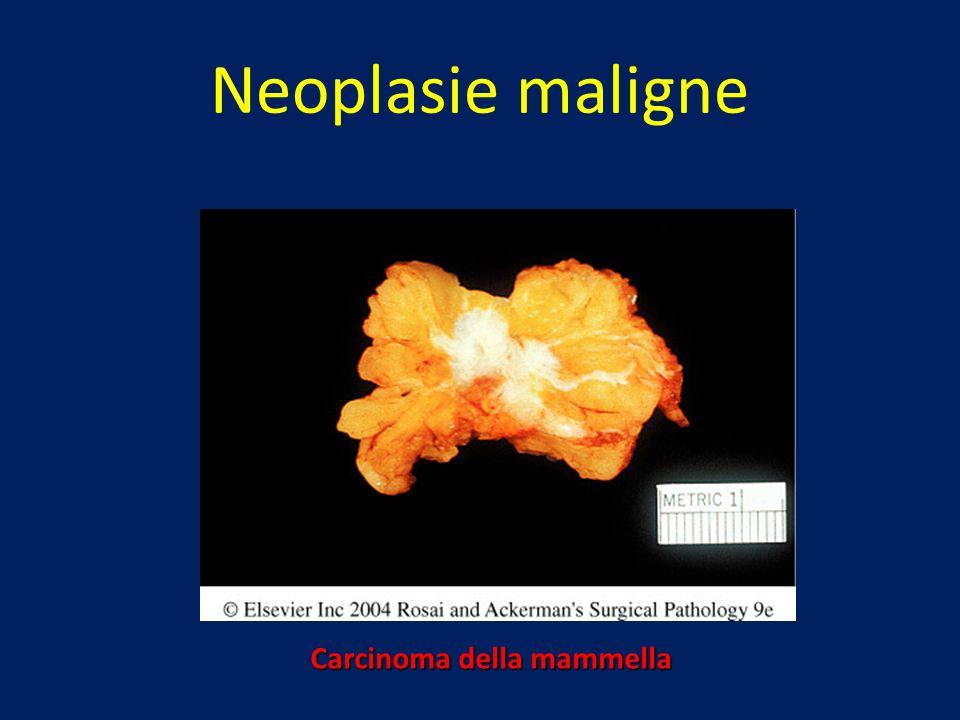 Neoplasie maligne Carcinoma della mammella