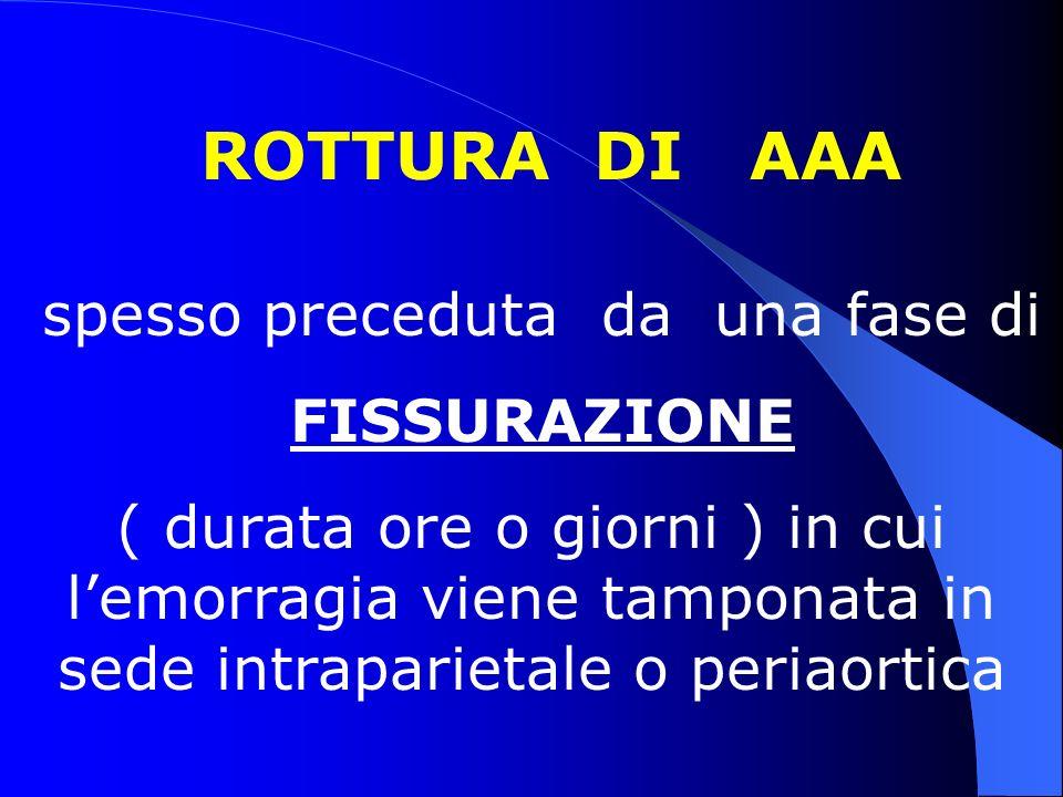ROTTURA DI AAA spesso preceduta da una fase di FISSURAZIONE ( durata ore o giorni ) in cui lemorragia viene tamponata in sede intraparietale o periaor