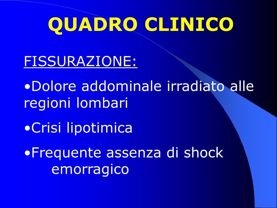 QUADRO CLINICO FISSURAZIONE: Dolore addominale irradiato alle regioni lombari Crisi lipotimica Frequente assenza di shock emorragico