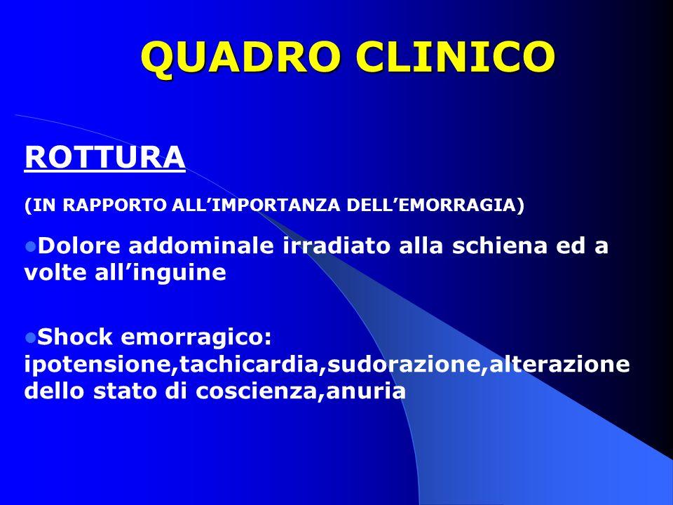 QUADRO CLINICO Dolore addominale irradiato alla schiena ed a volte allinguine Shock emorragico: ipotensione,tachicardia,sudorazione,alterazione dello
