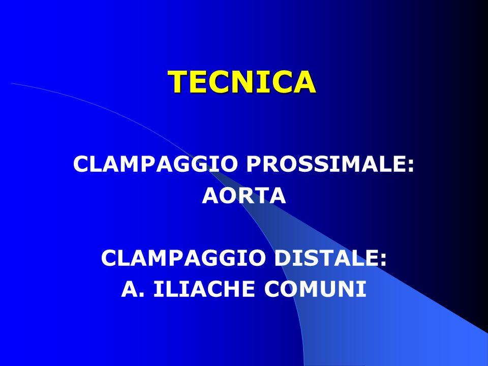 TECNICA CLAMPAGGIO PROSSIMALE: AORTA CLAMPAGGIO DISTALE: A. ILIACHE COMUNI