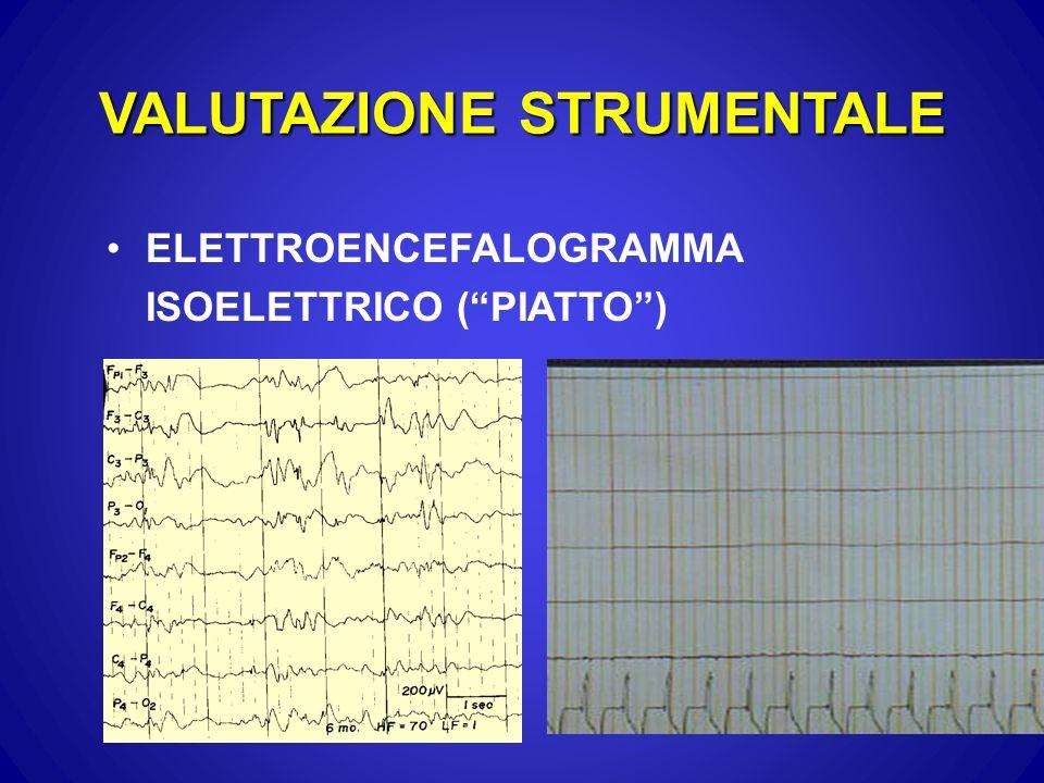 VALUTAZIONE STRUMENTALE ELETTROENCEFALOGRAMMA ISOELETTRICO (PIATTO)