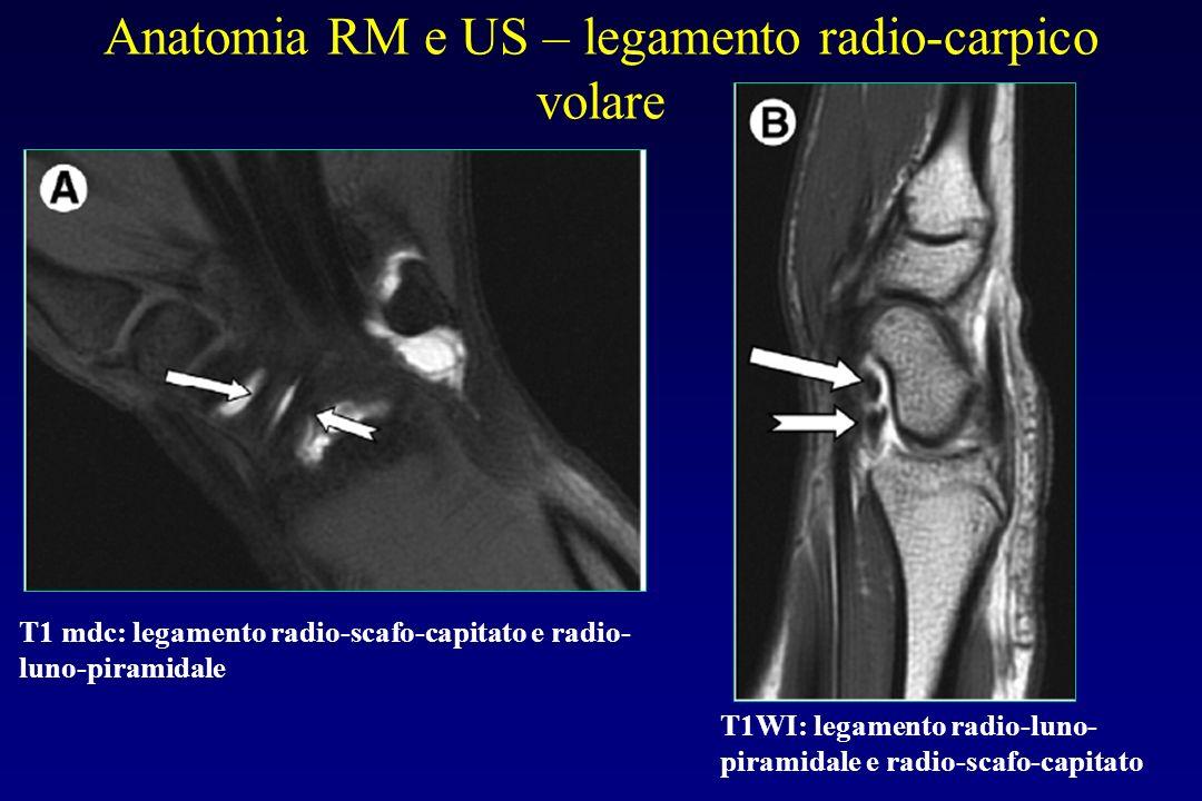 Anatomia RM e US – legamento radio-carpico volare T1 mdc: legamento radio-scafo-capitato e radio- luno-piramidale T1WI: legamento radio-luno- piramida