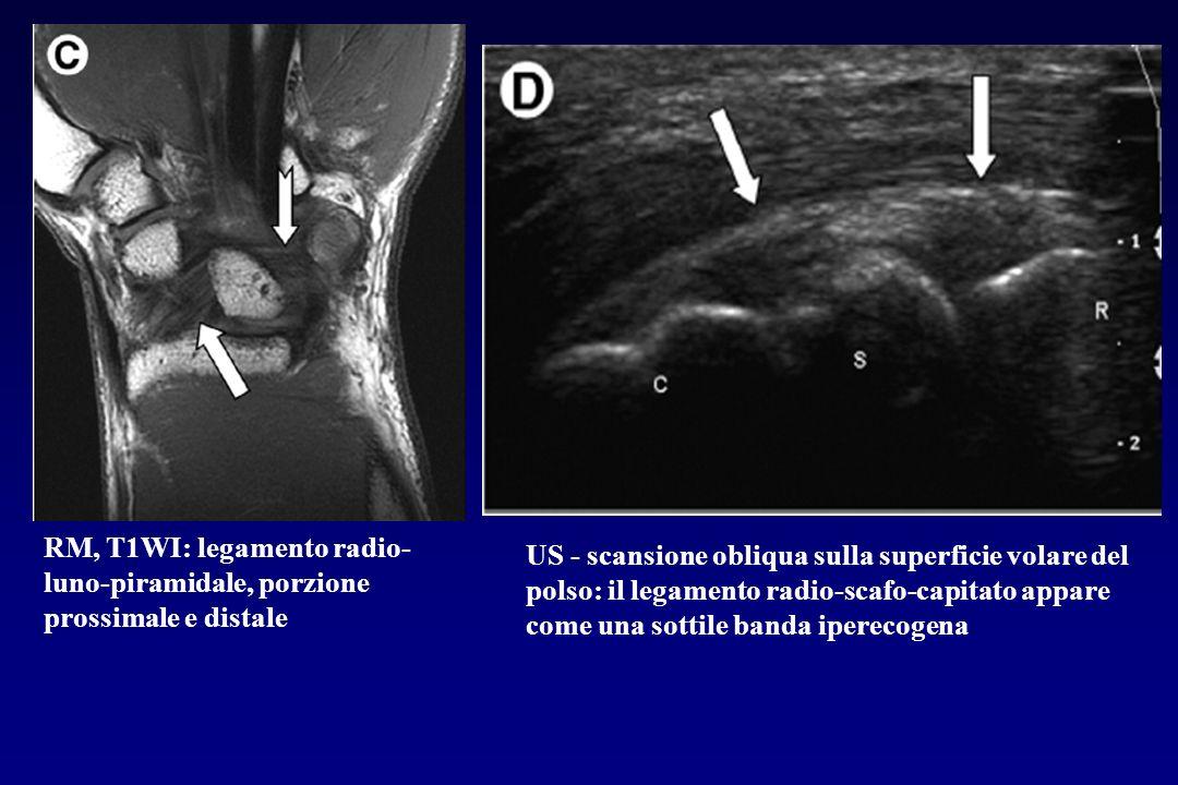 RM, T1WI: legamento radio- luno-piramidale, porzione prossimale e distale US - scansione obliqua sulla superficie volare del polso: il legamento radio
