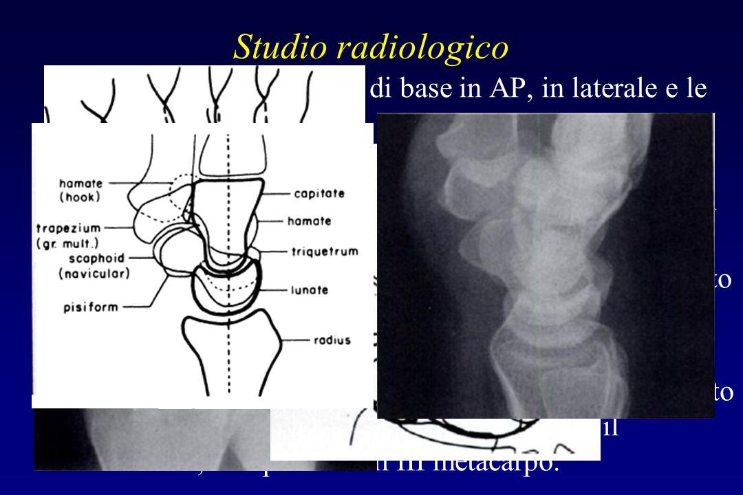 Studio radiologico Comprende le proiezioni di base in AP, in laterale e le oblique Reperi per il corretto allineamento delle ossa del carpo devono ess