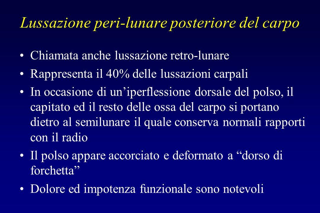 Lussazione peri-lunare posteriore del carpo Chiamata anche lussazione retro-lunare Rappresenta il 40% delle lussazioni carpali In occasione di uniperf