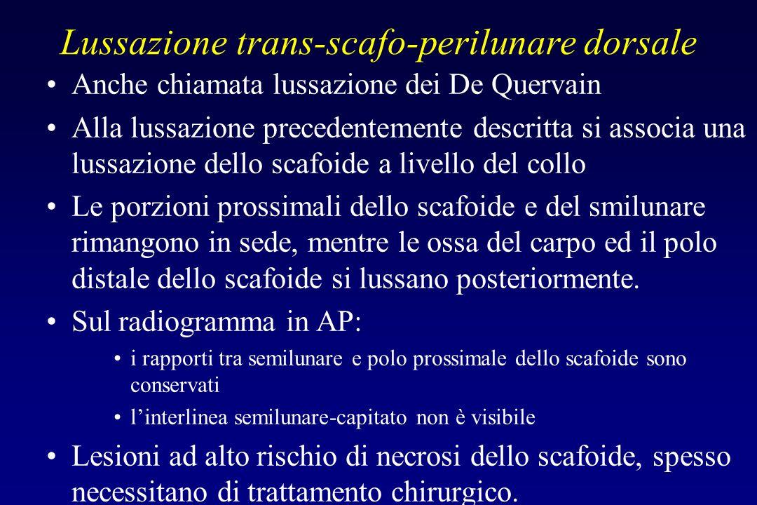 Lussazione trans-scafo-perilunare dorsale Anche chiamata lussazione dei De Quervain Alla lussazione precedentemente descritta si associa una lussazion