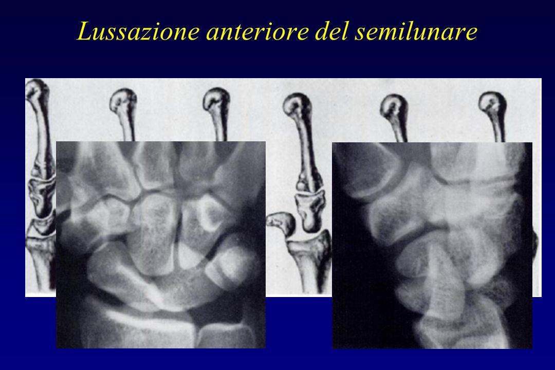 Lussazione anteriore del semilunare Nella proiezione AP: Lo spostamento del semilunare determina una sovrapposizione del suo corno posteriore sul capi