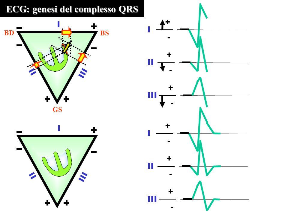 ECG: genesi del complesso QRS III II I BD BS GS + - I + - II III + - II I + - I + - III + -