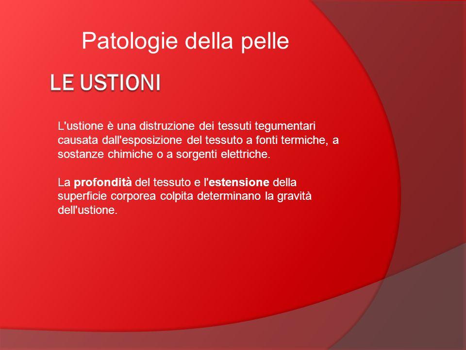 Patologie della pelle L'ustione è una distruzione dei tessuti tegumentari causata dall'esposizione del tessuto a fonti termiche, a sostanze chimiche o