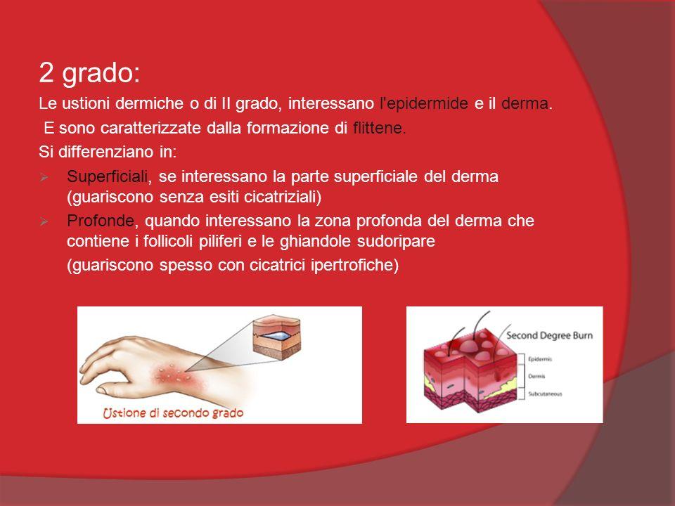 2 grado: Le ustioni dermiche o di II grado, interessano l'epidermide e il derma. E sono caratterizzate dalla formazione di flittene. Si differenziano