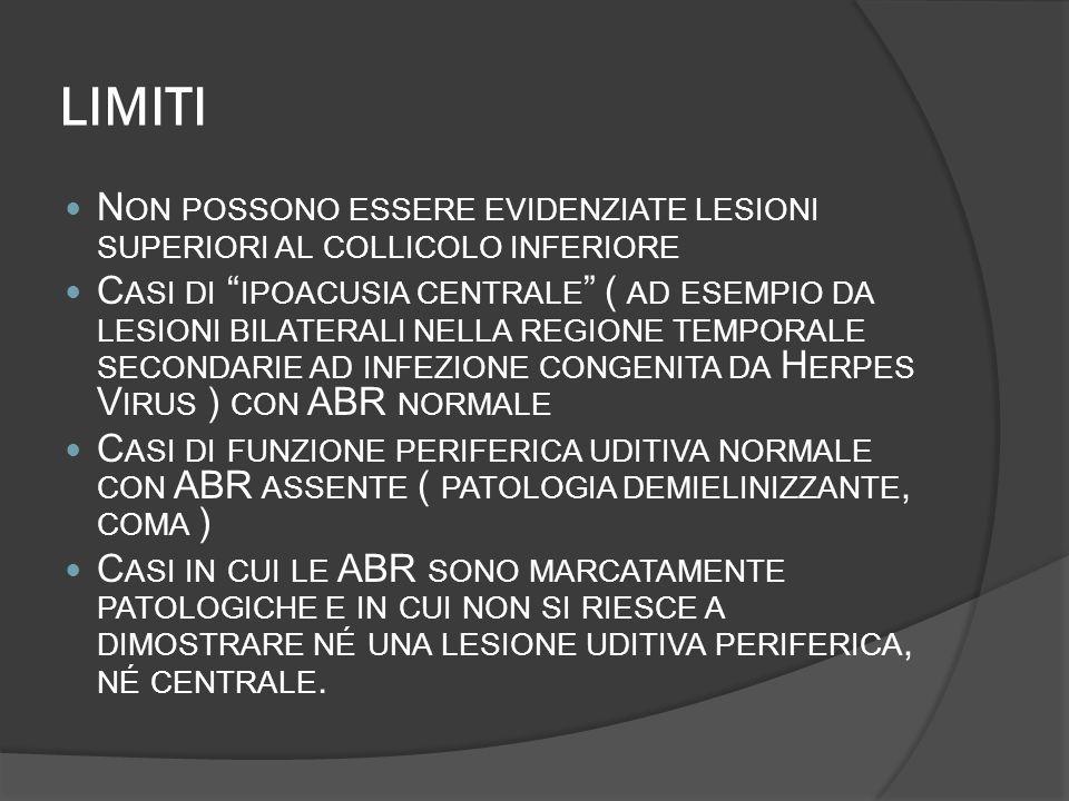 LIMITI N ON POSSONO ESSERE EVIDENZIATE LESIONI SUPERIORI AL COLLICOLO INFERIORE C ASI DI IPOACUSIA CENTRALE ( AD ESEMPIO DA LESIONI BILATERALI NELLA R