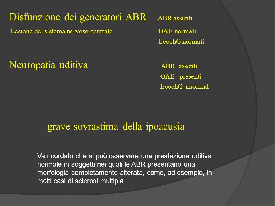 Disfunzione dei generatori ABR ABR assenti Lesione del sistema nervoso centrale OAE normali EcochG normali Neuropatia uditiva ABR assenti OAE presenti