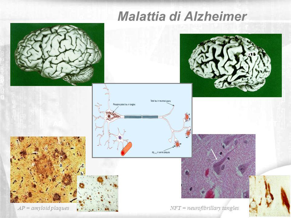 AD APNFT Malattia di Alzheimer NFT = neurofibrillary tanglesAP = amyloid plaques