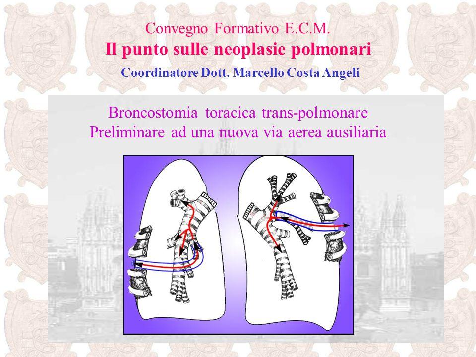 Broncostomia toracica trans-polmonare Preliminare ad una nuova via aerea ausiliaria Convegno Formativo E.C.M. Il punto sulle neoplasie polmonari Coord