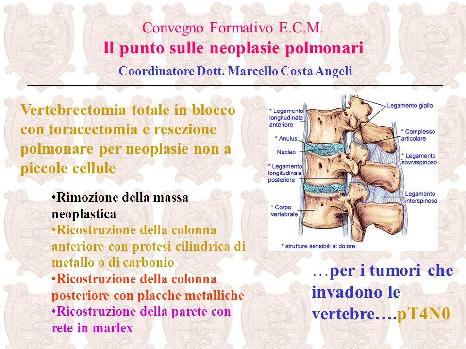 …per i tumori che invadono le vertebre….pT4N0 Convegno Formativo E.C.M. Il punto sulle neoplasie polmonari Coordinatore Dott. Marcello Costa Angeli Ve