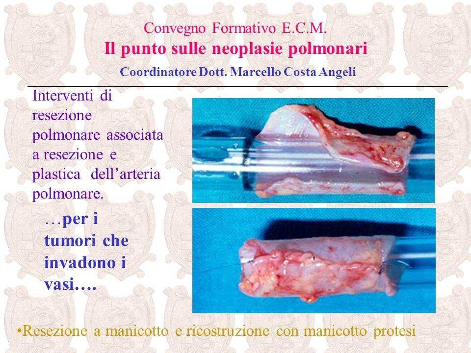 …per i tumori che invadono i vasi…. Convegno Formativo E.C.M. Il punto sulle neoplasie polmonari Coordinatore Dott. Marcello Costa Angeli Interventi d