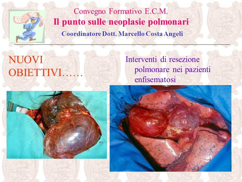 Convegno Formativo E.C.M. Il punto sulle neoplasie polmonari Coordinatore Dott. Marcello Costa Angeli Interventi di resezione polmonare nei pazienti e
