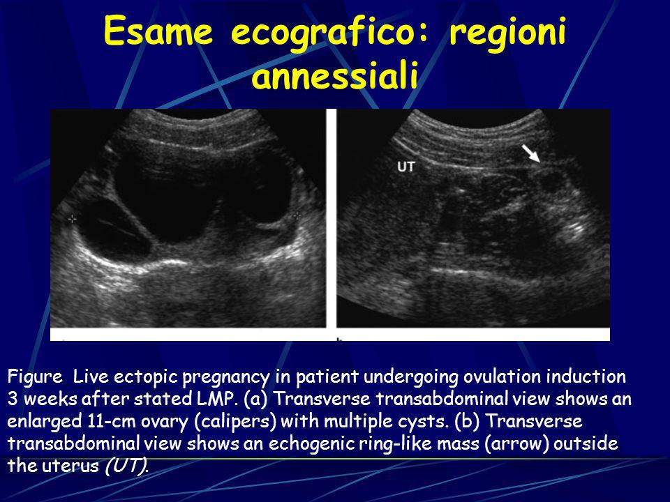 Figure Live ectopic pregnancy in patient undergoing ovulation induction 3 weeks after stated LMP. (a) Transverse transabdominal view shows an enlarged