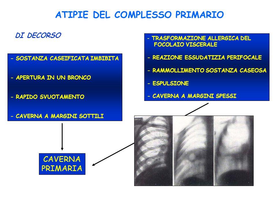 ATIPIE DEL COMPLESSO PRIMARIO - SOSTANZA CASEIFICATA IMBIBITA - APERTURA IN UN BRONCO - RAPIDO SVUOTAMENTO - CAVERNA A MARGINI SOTTILI - TRASFORMAZION
