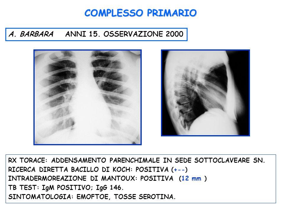 RX TORACE: ADDENSAMENTO PARENCHIMALE IN SEDE SOTTOCLAVEARE SN. RICERCA DIRETTA BACILLO DI KOCH: POSITIVA (+--) INTRADERMOREAZIONE DI MANTOUX: POSITIVA