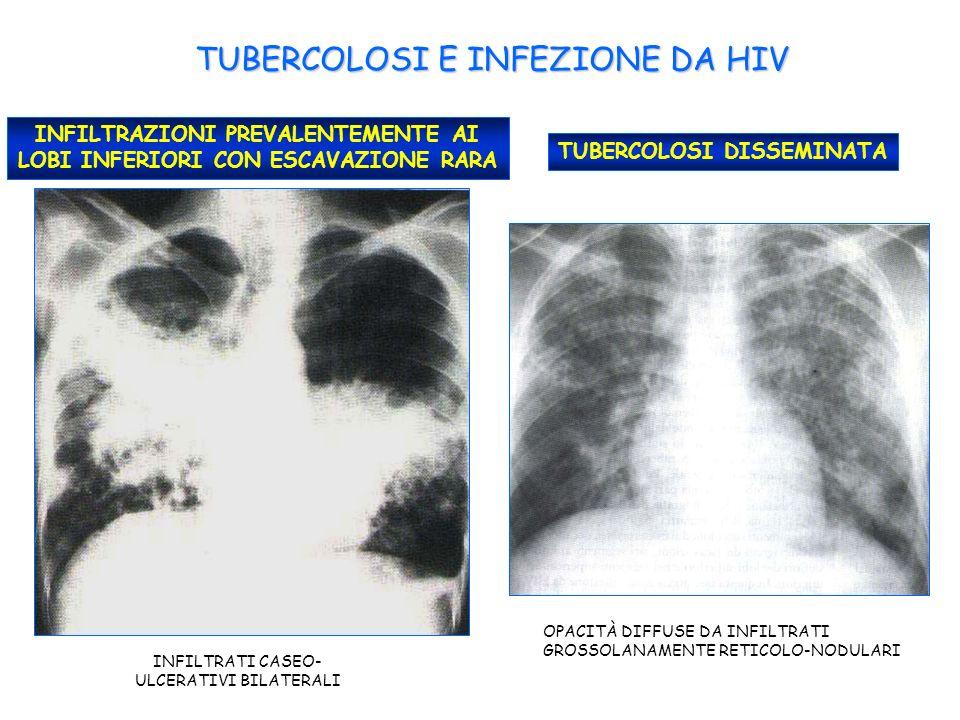TUBERCOLOSI E INFEZIONE DA HIV INFILTRAZIONI PREVALENTEMENTE AI LOBI INFERIORI CON ESCAVAZIONE RARA INFILTRATI CASEO- ULCERATIVI BILATERALI TUBERCOLOSI DISSEMINATA OPACITÀ DIFFUSE DA INFILTRATI GROSSOLANAMENTE RETICOLO-NODULARI