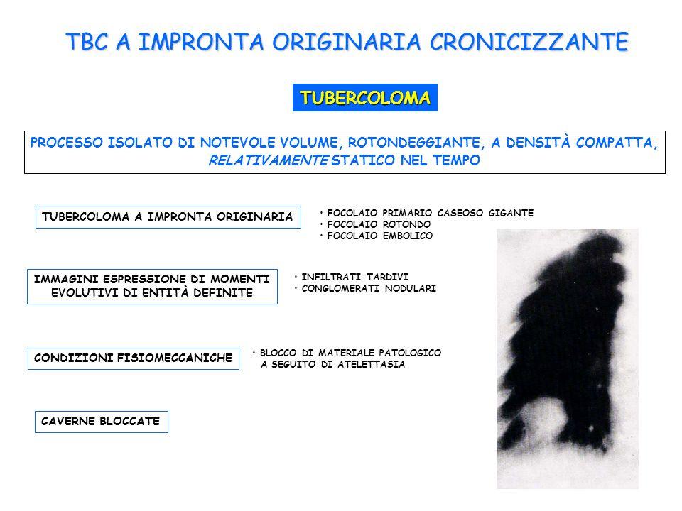 TBC A IMPRONTA ORIGINARIA CRONICIZZANTE TUBERCOLOMA PROCESSO ISOLATO DI NOTEVOLE VOLUME, ROTONDEGGIANTE, A DENSITÀ COMPATTA, RELATIVAMENTE STATICO NEL TEMPO TUBERCOLOMA A IMPRONTA ORIGINARIA FOCOLAIO PRIMARIO CASEOSO GIGANTE FOCOLAIO ROTONDO FOCOLAIO EMBOLICO IMMAGINI ESPRESSIONE DI MOMENTI EVOLUTIVI DI ENTITÀ DEFINITE INFILTRATI TARDIVI CONGLOMERATI NODULARI CONDIZIONI FISIOMECCANICHE BLOCCO DI MATERIALE PATOLOGICO A SEGUITO DI ATELETTASIA CAVERNE BLOCCATE