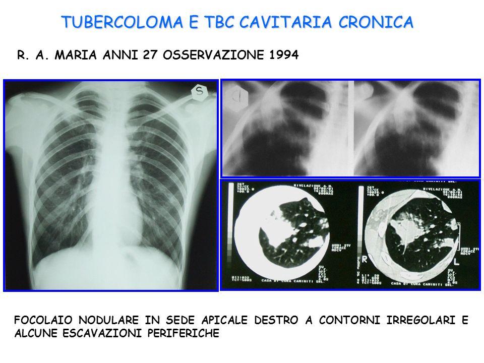 TUBERCOLOMA E TBC CAVITARIA CRONICA R. A. MARIA ANNI 27 OSSERVAZIONE 1994 FOCOLAIO NODULARE IN SEDE APICALE DESTRO A CONTORNI IRREGOLARI E ALCUNE ESCA
