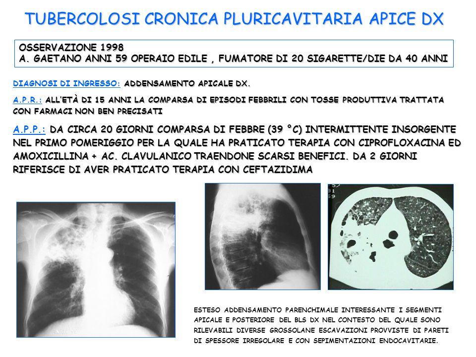 OSSERVAZIONE 1998 A. GAETANO ANNI 59 OPERAIO EDILE, FUMATORE DI 20 SIGARETTE/DIE DA 40 ANNI ADDENSAMENTO APICALE DX. DIAGNOSI DI INGRESSO: ADDENSAMENT