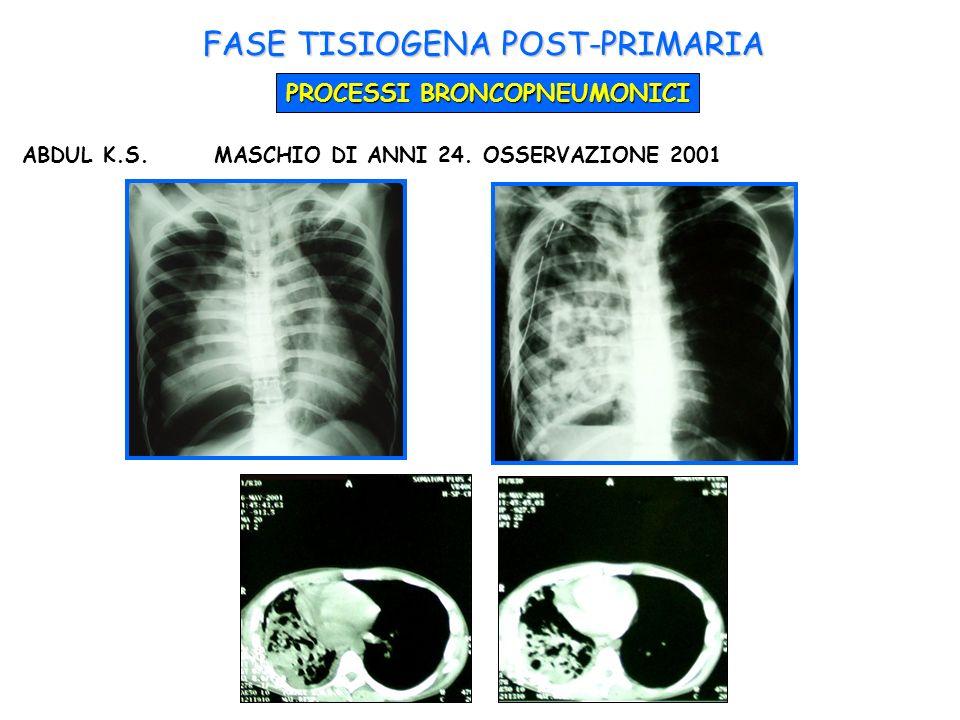 ABDUL K.S.MASCHIO DI ANNI 24. OSSERVAZIONE 2001 FASE TISIOGENA POST-PRIMARIA PROCESSI BRONCOPNEUMONICI